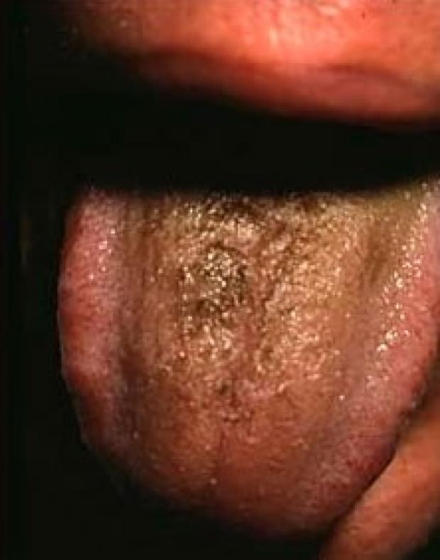 aspergillus tongue