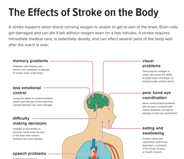 Effects of Stroke on the Body
