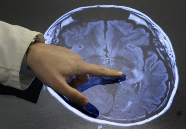 Doctor hand pointing at scan of brain with stroke
