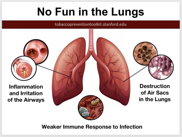 no-fun-in-lungs