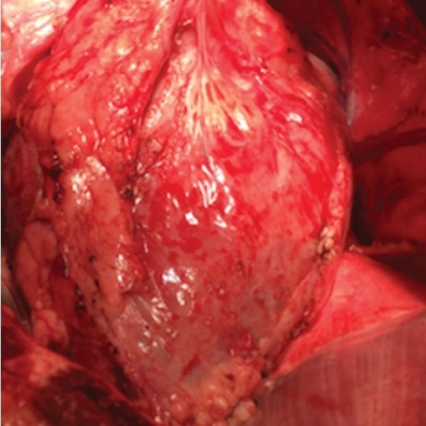 photo of heart