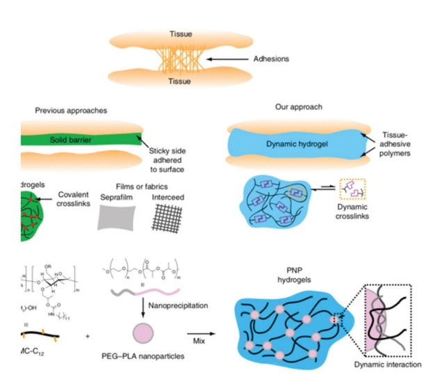 diagram of adhesions