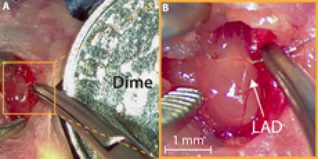 myocardial-regeneration1