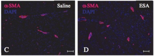 endothelial-progenitor-cells