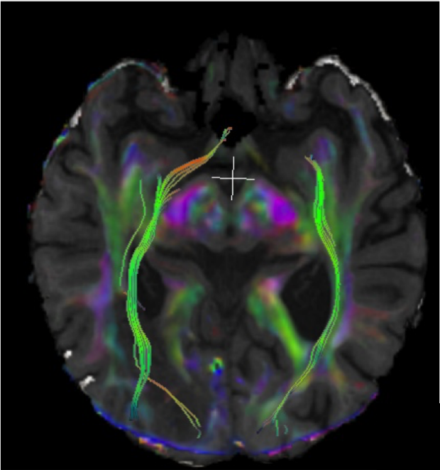 Clinical Tractography
