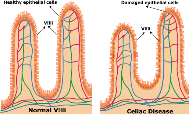 healthy epithelial cells vs damaged epithelial cells
