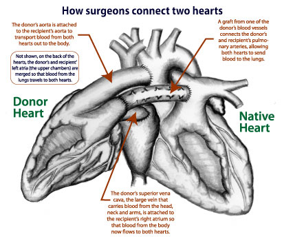 Two hearts are better than one for toddler who undergoes historic surgeons last month performed a heterotopic or piggyback heart transplant that involves connecting a donors heart to the patients heart as shown in the ccuart Choice Image