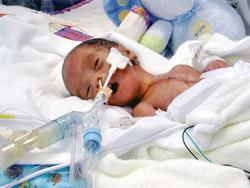 tiny newborns face higher risk at community hospital icus