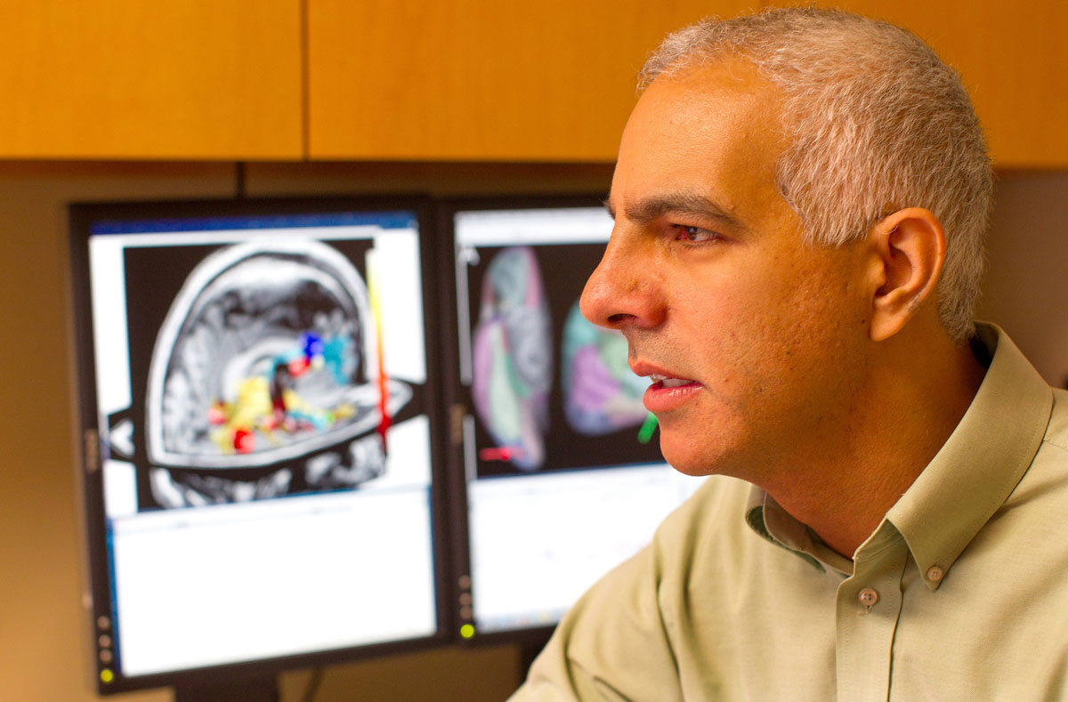 Study finds brain abnormalities in chronic fatigue patients