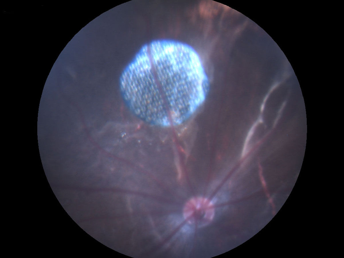 photovoltaic retinal implant could restore functional
