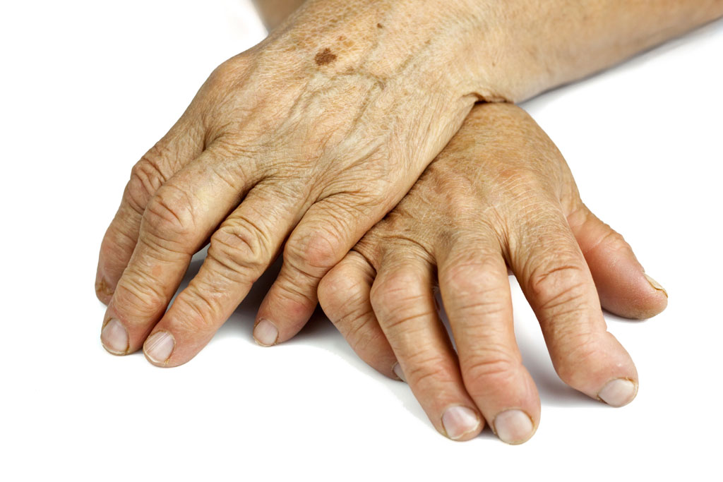 Phase 3 Trial Of Drug For Refractory Rheumatoid Arthritis Successful News Center Stanford Medicine