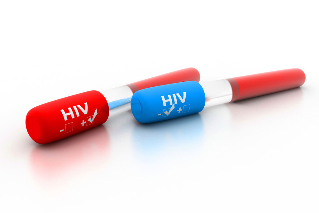 health promotion activity for hiv Hiv prevention update – pdph activities hpg december 3, 2014 health   health promotion – offer community-based hiv screening and.
