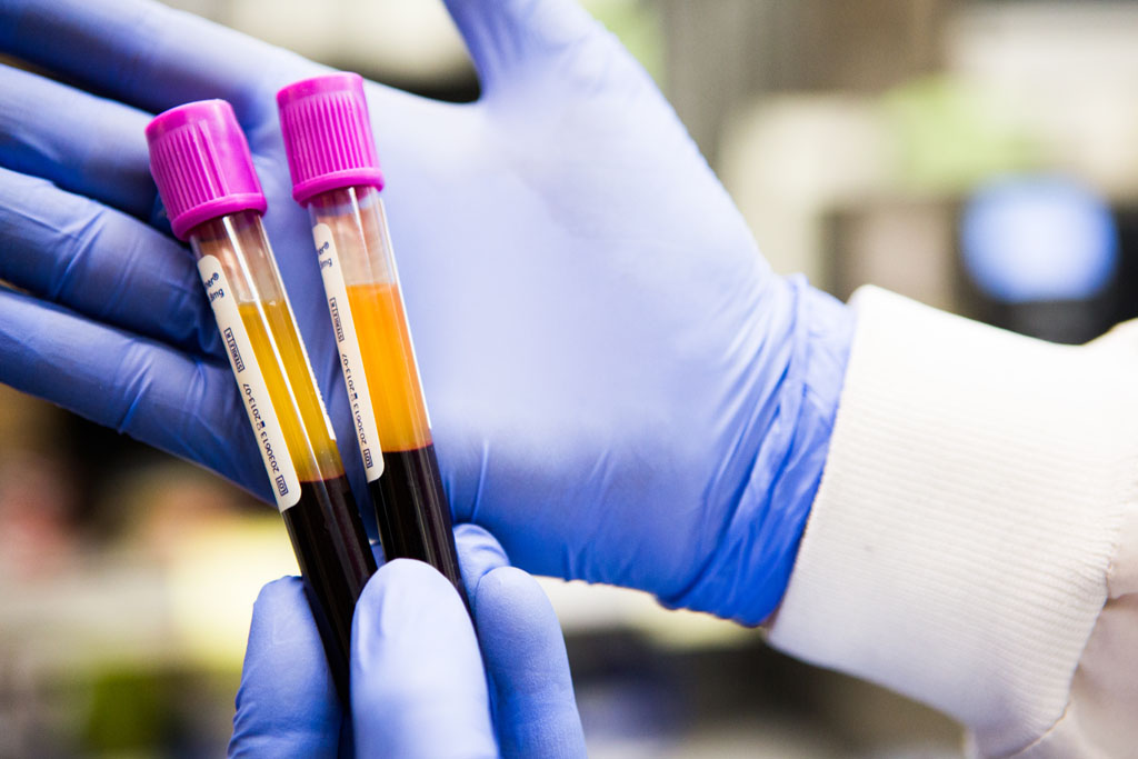 cheap blood test can discriminate between bacterial  viral