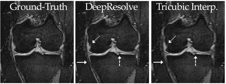 Super-Resolution Musculoskeletal MRI Using Deep Learning | Body MRI