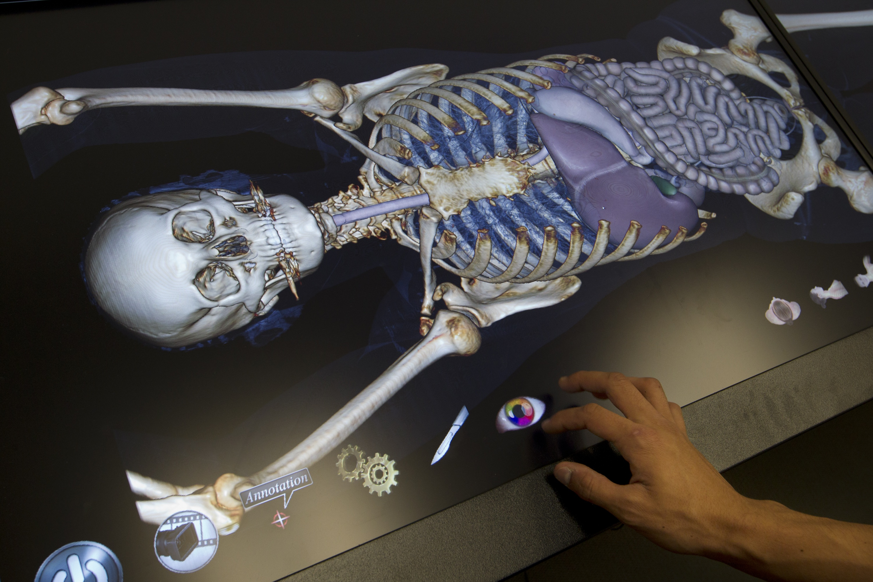 Body Image Computerized Table Lets Students Do Virtual Dissection