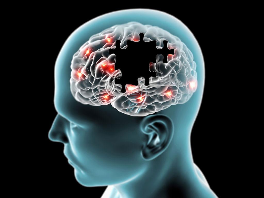 Scientists find potential diagnostic tool, treatment for Parkinson's disease