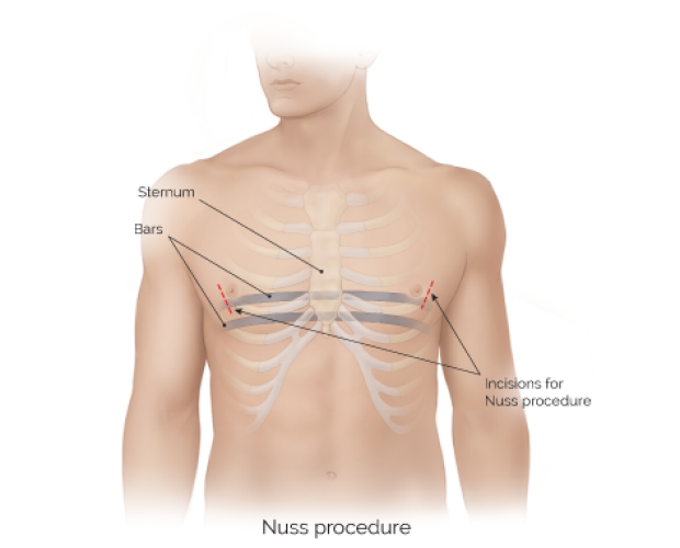 medical illustration of the Nuss procedure