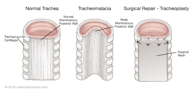 medical illustration of a tracheomalacia and tracheoplasty