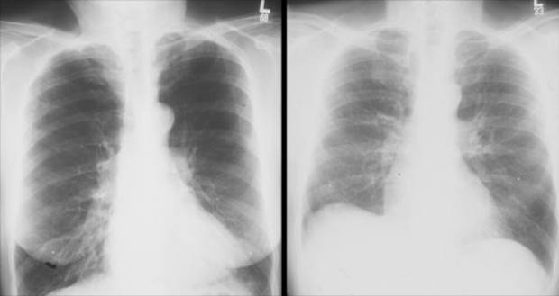 Chest x-rays before and after LVRS
