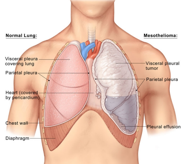 medical illustration of normal lung and mesothelioma