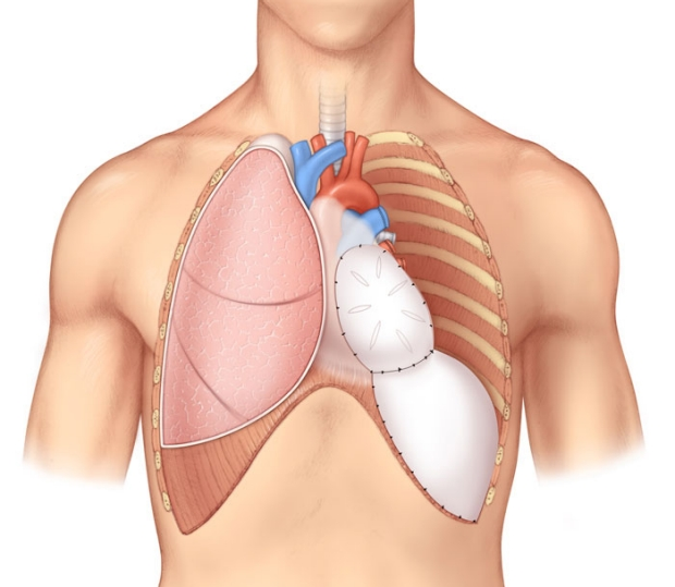 medical illustration of a extrapleural pneumonectomy
