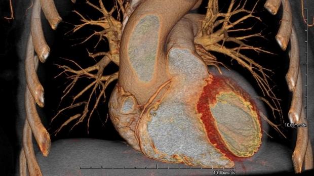 MRI of a heart