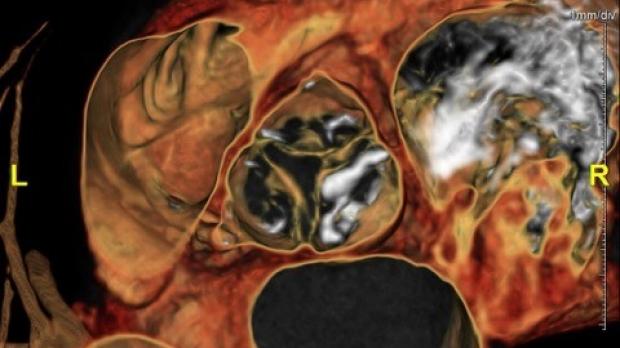 MRI of heart valves