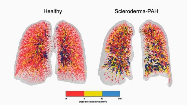graphic of healthy versus scleroderma-PAH lungs