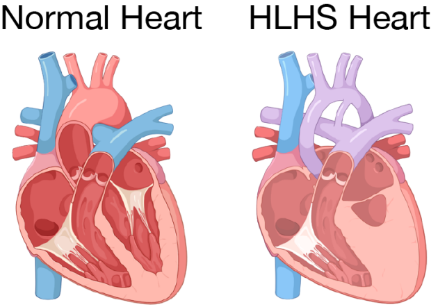 illustration of normal heart and one with hypoplastic left heart syndrome