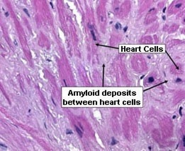 photo of amyloid deposits between heart cells