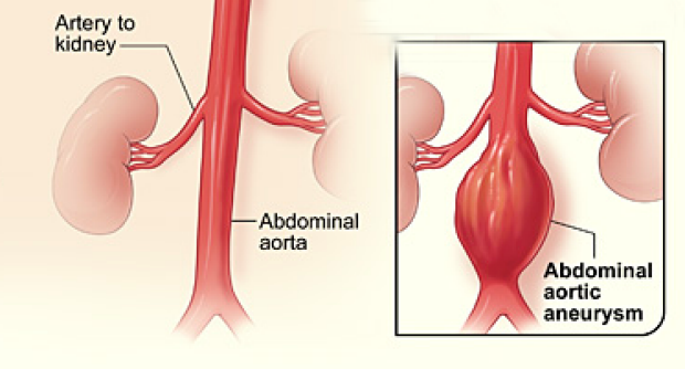 medical illustration of normal artery and one with an abdominal aortic aneurysm