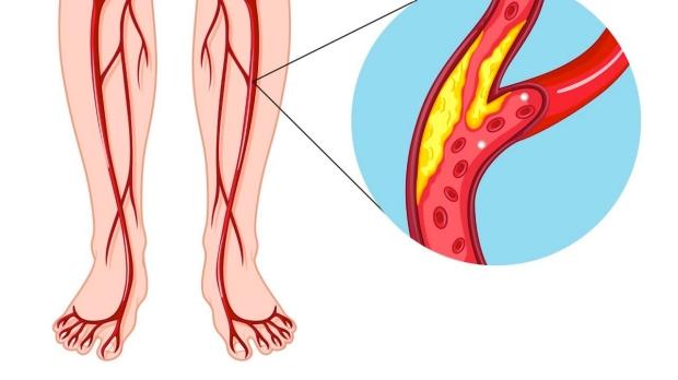 arterial-plaque-buildup