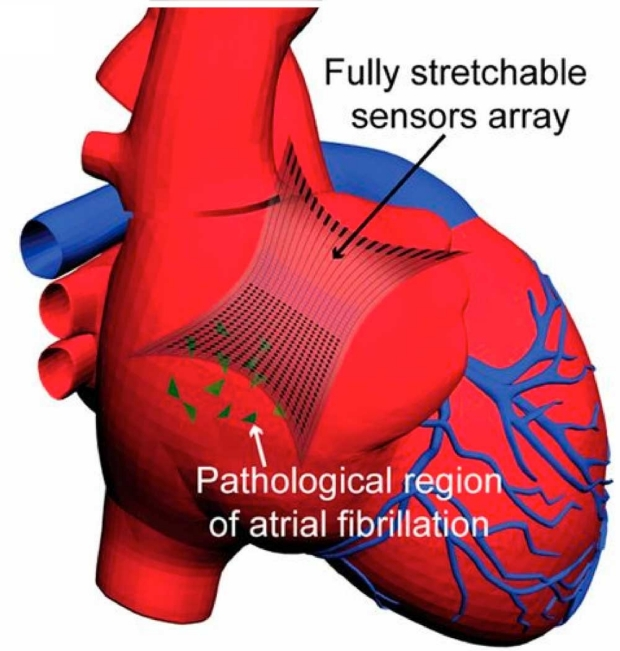 illustration of fully stretchable elastrode array attached to a human heart