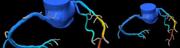 3D image simulating oxygen delivery to the heart in a patient with narrowed left anterior descending artery