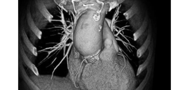 MRI of heart and ribs