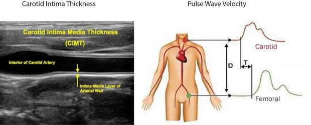 ultrasound of carotid intima thickness and graphic of pulse wave velocity