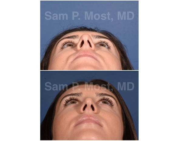 Sam P. Most - Revision Rhinoplasty