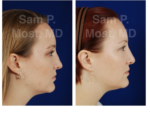 Sam P. Most Revision Rhinoplasty