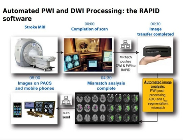 Image showing the PWI process from scan to analysis to Doctor's devices