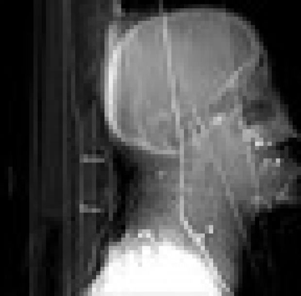 Media advisory: X-ray exhibit at Stanford shows human impact of terrorism