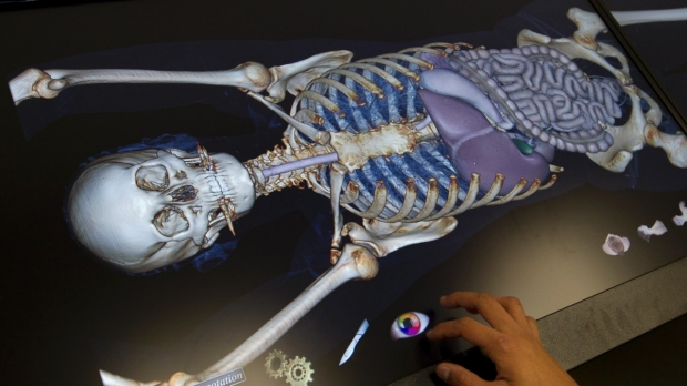 Body image: Computerized table lets students do virtual dissection