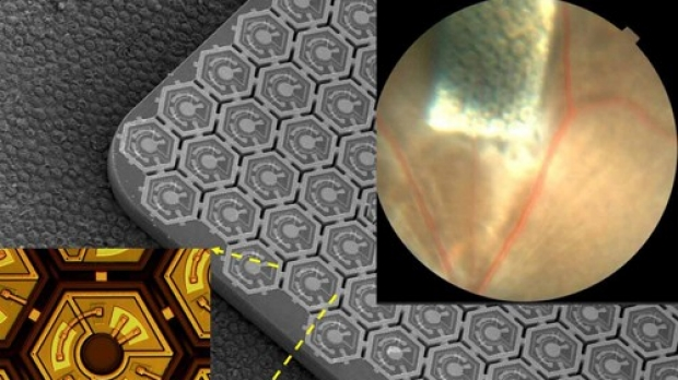 New type of retinal prosthesis could better restore sight to blind, study says