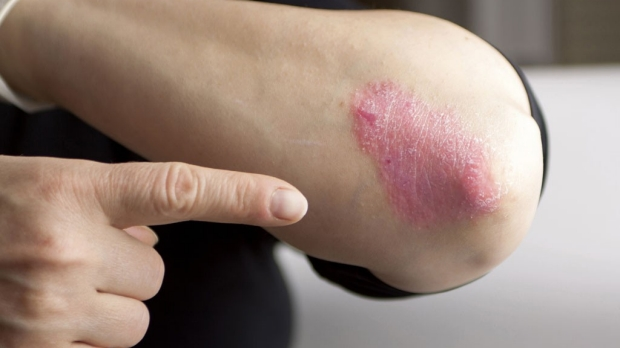 Breakthrough in understanding psoriasis