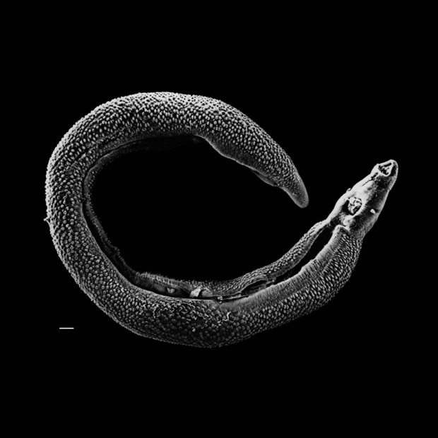 Ramping up treatment of parasitic worm disease cost-effective, researchers find