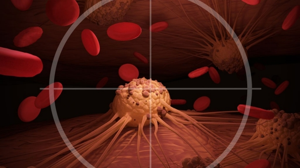 Scientists create 'guided chemotherapy missiles' that target cancer cells, spare healthy ones