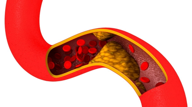 Anti-tumor antibodies could counter atherosclerosis