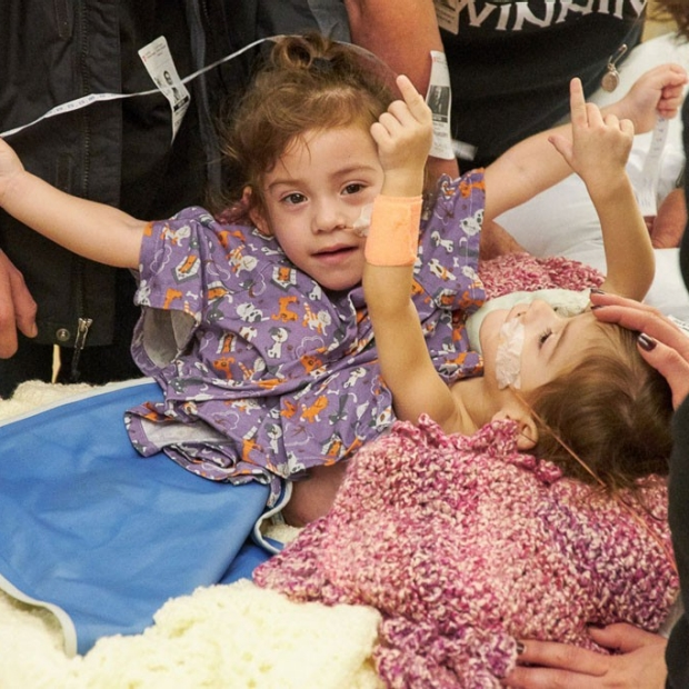 Conjoined twins successfully separated at Packard Children's Hospital
