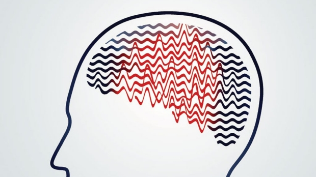 Research locates absence epilepsy seizure 'choke point' in brain