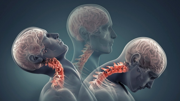 Study shows how head, neck positioning affects concussion risk