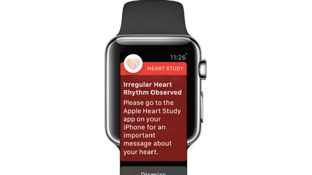 Stanford, Apple describe heart study with over 400,000 participants